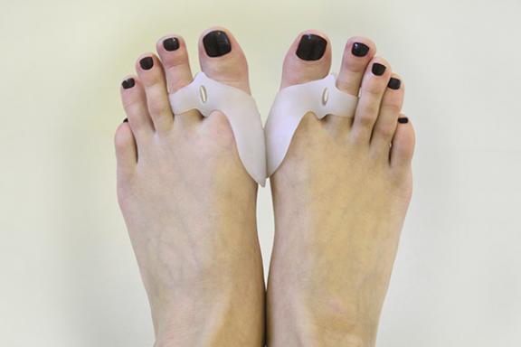 Orthoplastie sur deux pieds